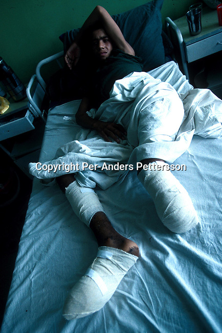 An unidentified mine victim at a Red Cross Hospital on July 27, 1996 in Kabul, Afghanistan. They took over most of the country in 1996, and have enforced strict muslim sharia law in the country. Women are not allowed to work or go to school cinemas and most sports have been banned..Photo: Per-Anders Pettersson/ iAfrika Photos