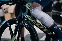 Mathew Hayman (AUS/Orica-Scott) apperently crashed during recon and needed some speedy 'patching up' before having to start his buildup ahead of his actual TT<br /> <br /> 104th Tour de France 2017<br /> Stage 20 (ITT) - Marseille › Marseille (23km)