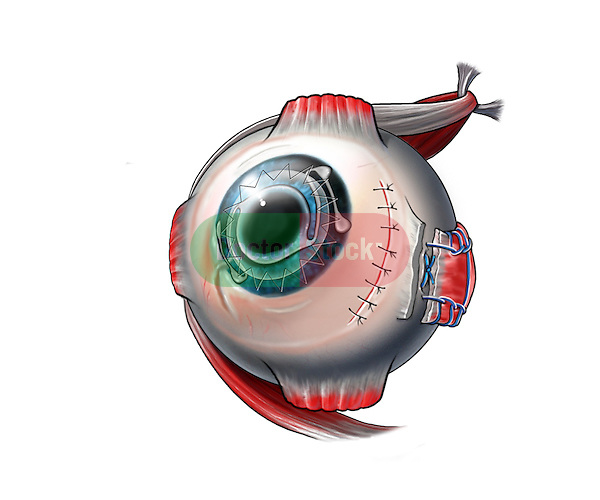 A surgical step in the correction of estropia condition. A medial transconjuntival incision is made to reach the medial rectus muscle. The muscle is released from its insertion point and is reattached in a recessed position.