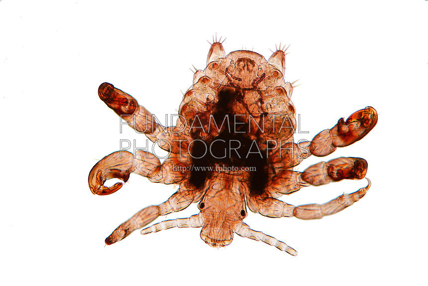 ECTOPARASITE<br /> Pubic Louse, Phthirus pubis, LM 40x mag<br /> <br /> This human parasite is also called the crab louse and is an obligate parasite requiring regular meals of human blood. The parasite is spread by body-to-body contact, usually during sexual encounters. Ectoparasites live outside the body.