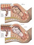 Complete Placental Abruption (Abruptio Placentae).