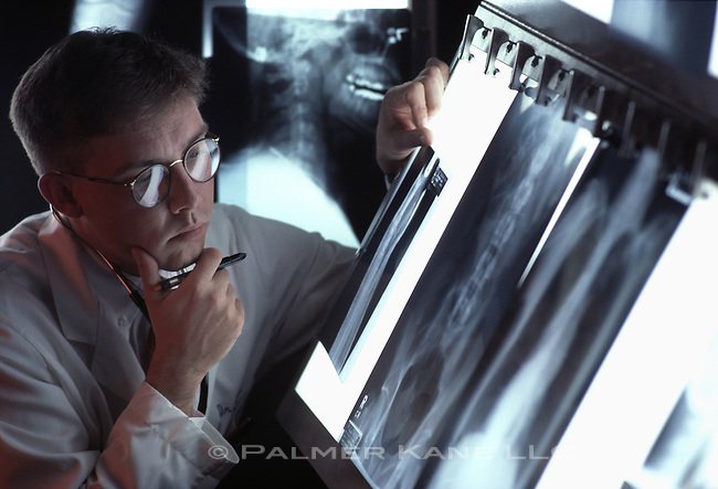 Male doctor examines x-rays.