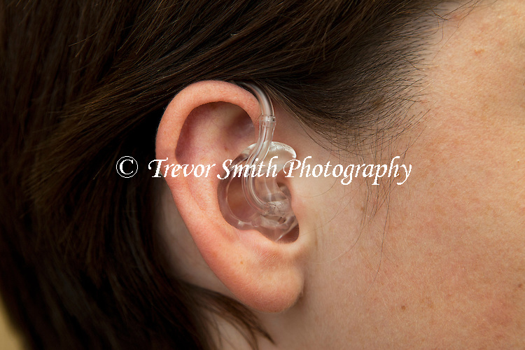 Incorrect positioning of a hearing aid