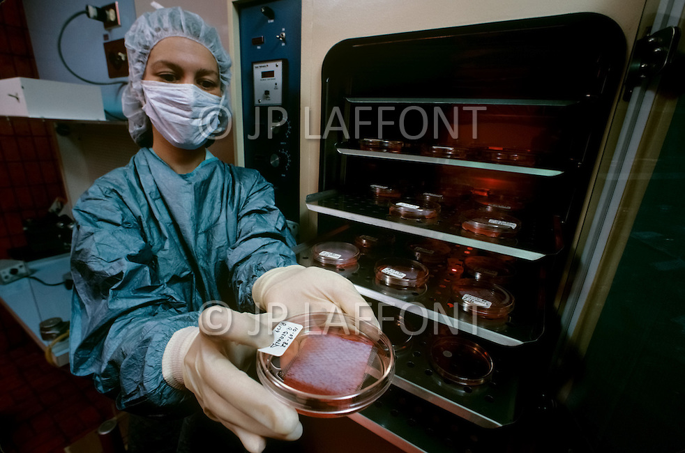 Los Angeles, U.S.A, January, 1983. The Sherman Oaks Hospital, a center  specializing in the treatment of seriously burned patients. Laboratory where the cloning skin technique is developed.