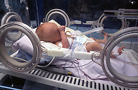Ospedale San Camillo, Roma. Reparto di Chirurgia pediatrica..San Camillo Hospital, Rome. Department of Pediatric Surgery.Bambino prematuro in incubatrice. Premature baby in incubator....