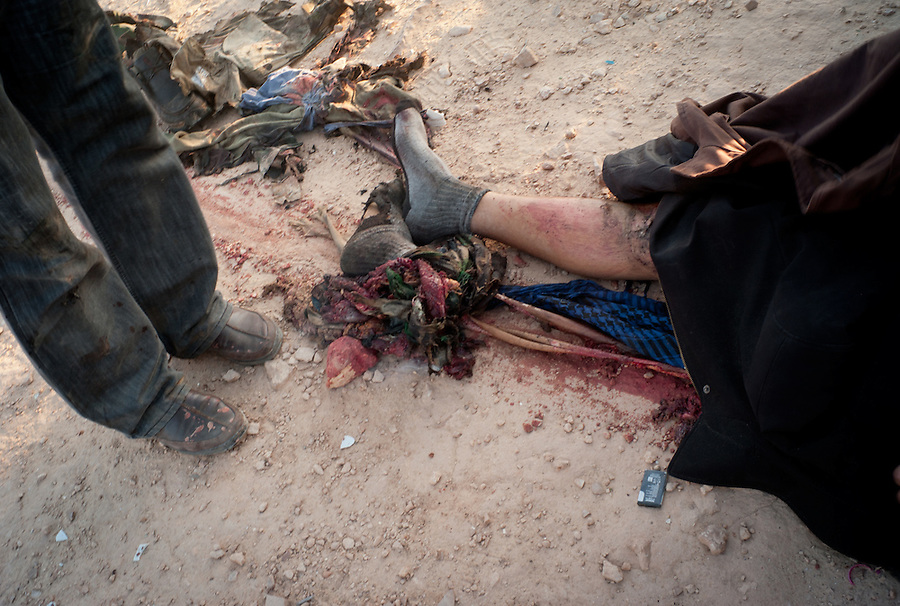 Rebel casualty outside Ajdabiya, Libya.