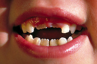 Close-up portrait of mouth of 8 year old girl with two missing front teeth.