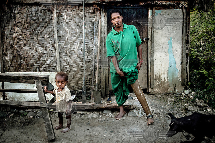 Nineteen year old Julie, with her son, shows off her prosthetic leg in front of her house. At the age of nine months, Julie's father attacked her and chopped off her leg. When she went to the city of Lae in 2011 to be fitted for a new prosthetic leg she was raped by members of a local gang and later found out she was pregnant. She now lives with her son James (left) in Kundiawa town.