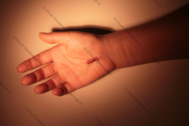 Photo of a hand with stitches in it from carpal-tunnel surgery.