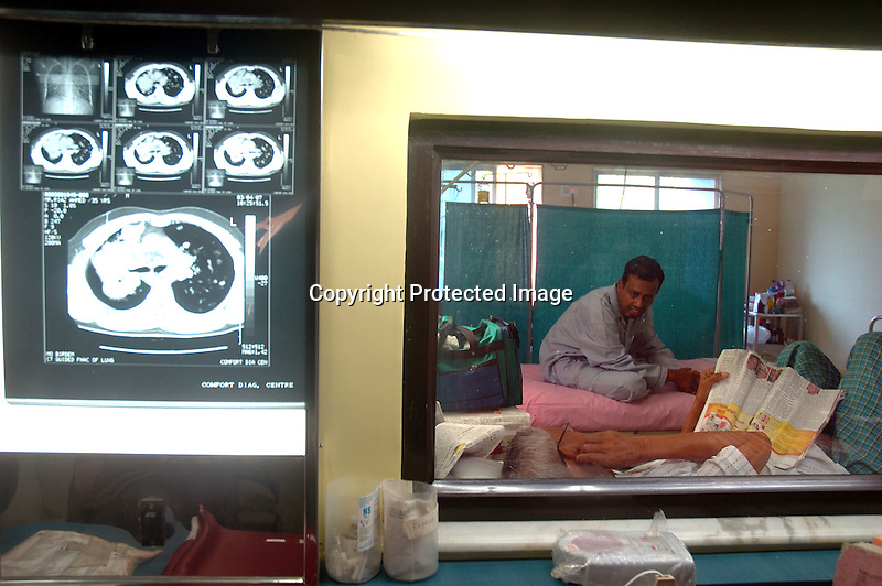 INDIA (West Bengal - Calcutta) 2007,Ct scan  report showing the condition of the lungs of  Riaz Ahmet who is seen through the windows in the background sitting with his co patient at Thakurpukur Cancer Hospital. He is dying of Lung cancer. Doctor said the reason for such diseases are excessive smoking and inhailing of polluting gases. A recent report by CNIC (CHITTARANJAN NATIONALCANCER INSTITUTE)  one of the most prominent cancer Institue of the country declairs Calcutta has the most air pollution in the country and 70% of its population suffers from respiratory and lung diseases. - Arindam Mukherjee