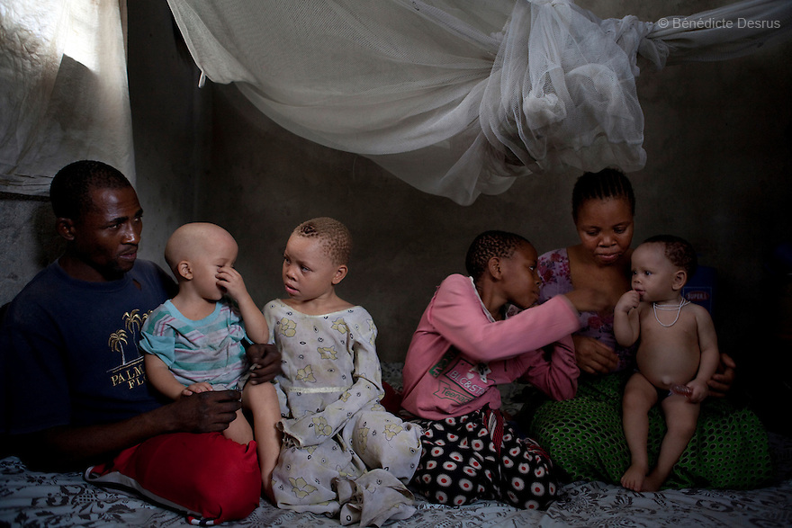 June 30, 2010 - Dar es Salaam, Tanzania - Fatima Husseni and her husband Hamisi Husseni are not Albino, although four of their five children are albinos. Albinism is a recessive gene but when two carriers of the gene have a child it has a one in four chance of getting albinism. Tanzania is believed to have Africa' s largest population of albinos, a genetic condition caused by a lack of melanin in the skin, eyes and hair and has an incidence seven times higher than elsewhere in the world. Over the last three years people with albinism have been threatened by an alarming increase in the criminal trade of Albino body parts. At least 53 albinos have been killed since 2007, some as young as six months old. Many more have been attacked with machetes and their limbs stolen while they are still alive. Witch doctors tell their clients that the body parts will bring them luck in love, life and business. The belief that albino body parts have magical powers has driven thousands of Africa's albinos into hiding, fearful of losing their lives and limbs to unscrupulous dealers who can make up to US$75,000 selling a complete dismembered set. The killings have now spread to neighboring countries, like Kenya, Uganda and Burundi and an international market for albino body parts has been rumored to reach as far as West Africa. Photo credit: Benedicte Desrus