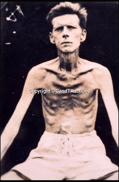 BNPS.co.uk (01202 558833)Pic:CandTAuctions/BNPS<br /> <br /> The skeletal frame of a British prisoner of war<br /> <br /> Shocking photographs showing the skeletal state of British PoWs in Japan after they were liberated at the end of the Second World War have been unearthed.<br /> <br /> Hundreds of emaciated servicemen who had been starved and brutally beaten by their captors were found by Allied troops following the fall of Japan in 1945.<br /> <br /> Photographers were brought in to take pictures of the PoWs to be used as evidence for any potential war crimes trial.<br /> <br /> The images show gaunt and haggard men whose bodies have been reduced to skin and bone.<br /> <br /> There are also images of showing some of the most sadistic Japanese guards including the notorious camp commandment Lieutenant Usuki, who was known as the Black Prince.