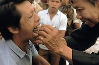 Indonesia, Java island: Pak Iwo, dukun in Yogyakarta extracts a tooth without anesthesia.Indonesia, Giava: Pak Iwo, dukun di Yogyakarta estrae un dente senza anestesia.