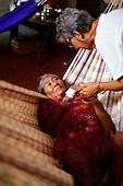 Boa Vista, Brazil. FUNAI doctor comforts a Yanomami Indian malaria victim lying in a hammock.