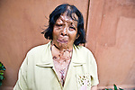 Acid attack survivor Thong Kham sheds tears as she talks about her scars in a result of attack in May 1990. She believes that the perpetrator made a mistake and attacked the wrong person.