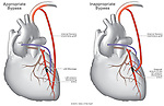 Comparison of appropriate vs. inappropriate coronary artery heart bypass surgery.