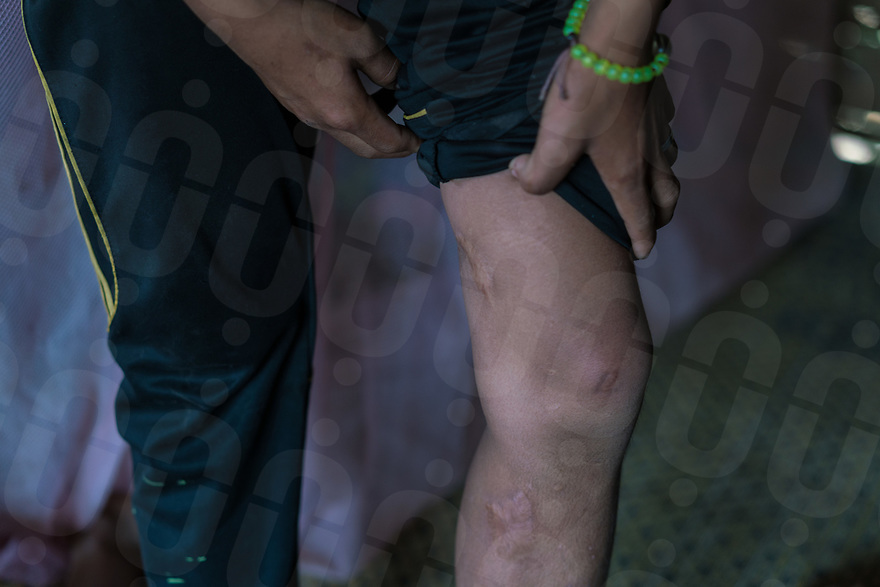 May 9, 2017 - Luang Prabang (Laos). Ming shows the scars on his leg caused by the explosion of the UXO. © Thomas Cristofoletti / Ruom