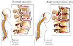 Degenerative Spine Disease - Ankylosing Spondylitis. Contrasts normal anatomy with the vertebral fusion (fused vertebrae) resulting from ankylosing spondylitis.