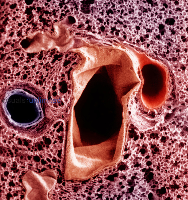 Lung section showing from left to right - pulmonary vein (blue), bronchus (brown), and pulmonary artery (red), all surrounded by alveoli. SEM X20 at 2 1/2 inches square **On Page Credit Required**