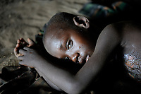 ETHIOPIA, Southern Nations, Lower Omo valley, Kangaten, village Kakuta, Nyangatom tribe, boy with critical burns in hut / AETHIOPIEN, Omo Tal, Kangaten, Dorf Kakuta, Nyangatom Hirtenvolk, Junge mit Verbrennungen
