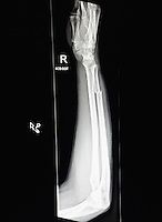 Pictured: X-ray of the broken arm of photographer Dimitris Legakis after being assaulted by man who smashed window of parked car in the early hours of Saturday, 17 December, 2016<br /> Re: Mad or Black Friday in Middlesbrough, England, UK