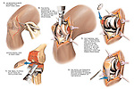 Total Right Knee Joint Replacement Surgery.