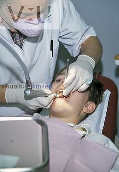 Teeth being cleaned at the dentist.