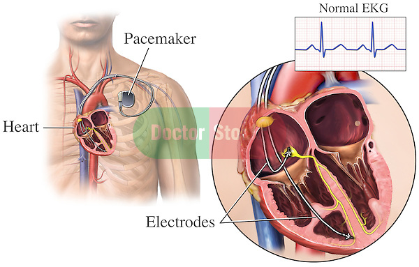 This medical exhibit depicts the correct placement of a pacemaker.  The heart's electrical impulses stabilize and result in a normal EKG.