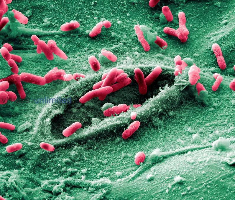 E. coli Bacteria on spinach. SEM X4000