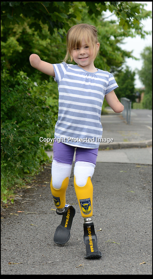 BNPS.co.uk (01202 558833)<br /> Pic: RachelAdams/BNPS<br /> <br /> Charlotte Nott (5) with her new legs<br /> <br /> Determined Charlotte Nott has battled back from the brink of death in hospital three years ago to run for the first time on a new pair of prosthetic blades. Charlotte (5), from Oxford, lost all four limb to meningitis, and since then she has used rigid prosthetic legs which enable her to walk but has never been able to run around with her friends or younger brother. But she has now been donated custom made £3,500 blade legs from specialists Dorset Orthopaedic in Ringwood, Dorset.