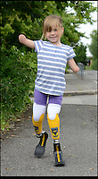 BNPS.co.uk (01202 558833)<br /> Pic: RachelAdams/BNPS<br /> <br /> Charlotte Nott (5) with her new legs<br /> <br /> Determined Charlotte Nott has battled back from the brink of death in hospital three years ago to run for the first time on a new pair of prosthetic blades. Charlotte (5), from Oxford, lost all four limb to meningitis, and since then she has used rigid prosthetic legs which enable her to walk but has never been able to run around with her friends or younger brother. But she has now been donated custom made &pound;3,500 blade legs from specialists Dorset Orthopaedic in Ringwood, Dorset.