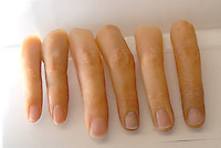 Prosthetic hands and fingers at the Hello Tomorrow Clinic in Tokyo, Japan. The clinic specializes in making false fingers to Japanese gangsters, known as the Yakuza, who have had to show allegiance etc by cutting their own fingers off.  the clinic has made and fitted fingers to over 3,000 gang members who need to disguise thier back-ground.<br /> 10-Oct-2006