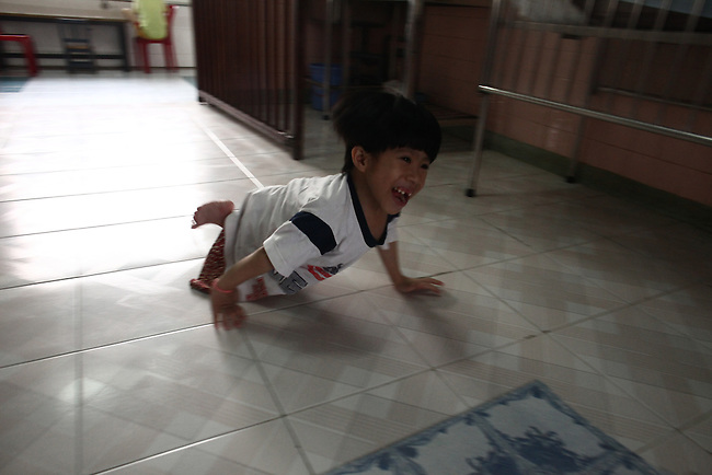 A child born with only one malformed leg  plays at the Agent Orange children's ward of Tu Du Hospital in Ho Chi Minh City, Vietnam.  About 500 of the 60,000 children delivered each year at the maternity hospital, Vietnam's largest, are born with deformities, some because of Agent Orange, according to doctors. May 1, 2013.