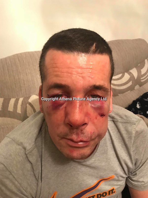 """Pictured: Johnathan Broom after the attack<br /> Re: A man has been left needing surgery after being attacked by three men in what is believed to have been a case of mistaken identity.<br /> 42 year old Johnathan Broom, from the Clase area of Swansea, was """"sliced"""" on his back when he was attacked by three men while walking home after visiting a friend's house on Sunday night.<br /> During the assault, Mr Broom heard one of the men saying """"we've got the wrong man"""", with another shouting """"sorry"""" before they got back in their car and left the scene.<br /> Danielle Ross, his 28 year old partner said: """"He's got a broken nose, a fractured eye socket, swollen eyes, bruising and marks on his back"""".<br /> Mr Broom will now need an an operation for his nose to straighten it."""