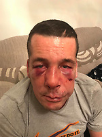 2018 12 05 Jonathan Broom attacked near his home in Swansea, Wales, UK