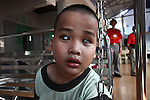 A boy with severe cataracts sits on a swing at the Doc Son Pagoda orphanage in Hue, Vietnam. The orphanage is currently home to 170 children, some of whom have physical or mental disabilities. April 22, 2013.
