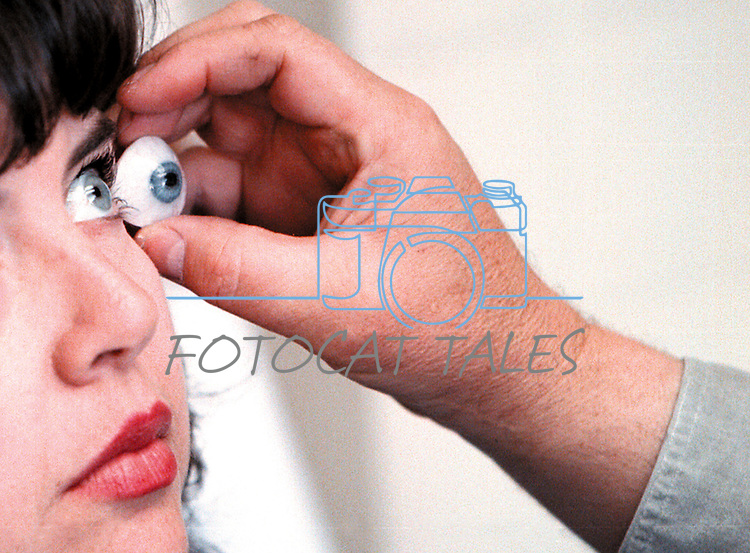 After losing an eye to a rare cancer, Katie Ortiz sits patiently through the process of creating a prosthetic eye in Oakland, Ca., in this undated photo. Ocularist Steven Young compares the colors of her iris with his artwork..Photo by Cathleen Allison/Copyright Nevada Appeal