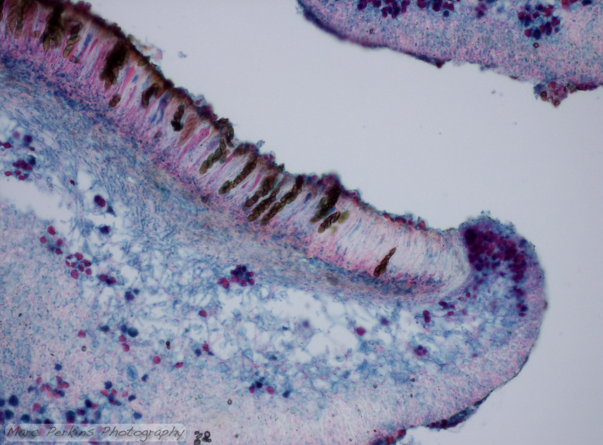 Cross section through a lichen ascocarp (fruiting body).  The hymenium of asci is visible, as are many ascospores inside the asci.  Fungal hyphae are seen as long strands of blue/pink cells; algae or cyanobacterial symbionts are the stained circles inside the body.