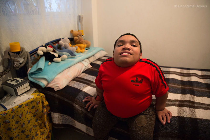 Alfredo Ivan Torres Gil, 18 year-old, is pictured in his bedroom in Mexico City, Mexico, on February 16, 2017. Alfredo is one of five siblings, three of whom have been diagnosed with Morquio syndrome. Morquio syndrome is a rare inherited birth defect that is estimated to occur in one of every 200,000 births. The disease may not be visible at birth; symptoms usually begin between ages 1 and 3. Morquio syndrome is a progressive disease, meaning symptoms get worse as a child grows. Photo credit: Bénédicte Desrus