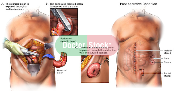 Large Bowel Surgery - Colon Resection and Colostomy Procedure. This  surgery illustration series features multiple laparotomy views of the male abdomen revealing the incision, large intestine resection, stump closure and colostomy formation in a left lower quadrant perforated sigmoid bowel resection.
