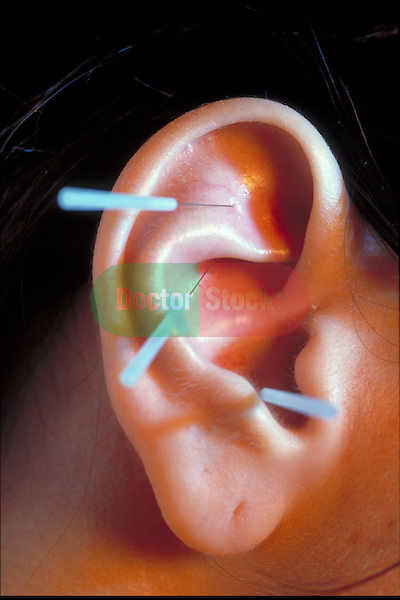 close-up of acupuncture needles in patient's ear