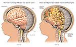 Bacterial meningitis.