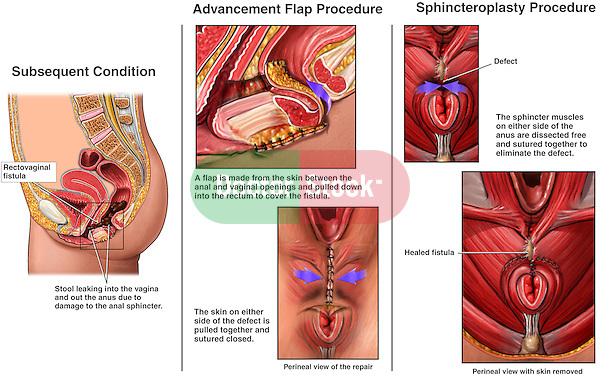 This medical exhibit features a rectovaginal fistula and the subsquent anal incontinence. It includes the surgical steps involved in the repair of the anal sphincter.