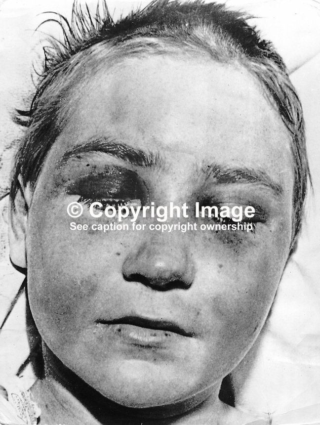 Elizabeth Hyland, 15 years old, pictured in a Belfast Hospital recovering from a 5 day ordeal which ended with her being tarred and feathered by members of the Provisional IRA. The IRA claimed she was an informer for the RUC Special Branch. 197705110000EH..Copyright Image from Victor Patterson, 54 Dorchester Park, Belfast, United Kingdom, UK...For my Terms and Conditions of Use go to http://www.victorpatterson.com/Victor_Patterson/Terms_%26_Conditions.html