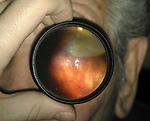 View through an indirect ophthalmoscope showing an inferior retinal detachment.