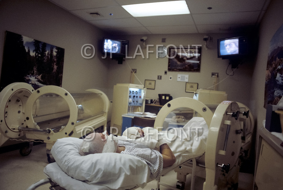 Los Angeles, U.S.A, January, 1983. The Sherman Oaks Hospital, a center  specializing in the treatment of seriously burned patients. The most most severely burned patients are placed inside a hyperbaric chamber. This high-pressure, oxygen-enriched capsule prevents general swelling and promots healing of the wounds.