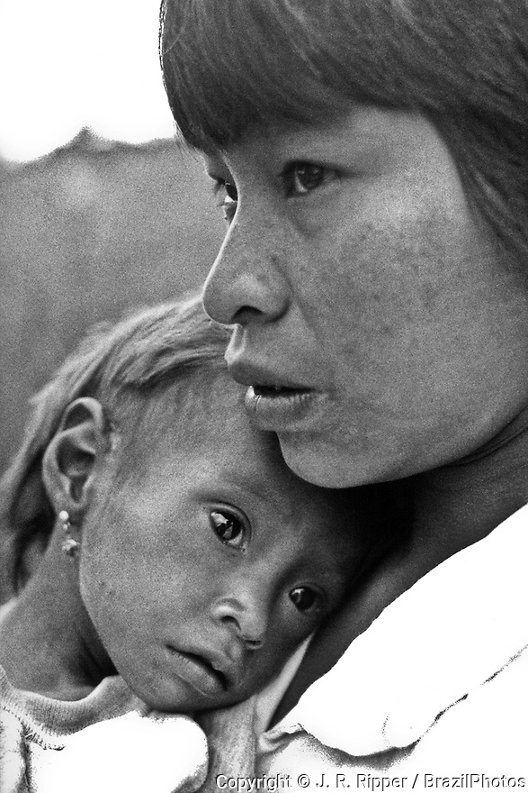 Undernourished child, Brazil. Guarani-Kaiowa indigenous people. Poverty, expulsion from traditional territories in recurrent disputes with wealthy ranchers and the overpopulation of the remaining lands are the main factors leading this unique people to slow extinction.