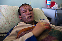 Khan Younes, Gaza Strip, Jan 12 2009.Naser Hospital, Etham Ahmed, 20, was in his field behind his house in Garara with his cousin when he saw white smoke coming from the sky and was instantly burned over his face and hand. Doctors categorically declare that he suffers from deep chemical burns, NOT heat exposure. Chemical weapons use in a civilian area constitute a war crime according to the Geneva convention.