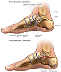 Right Foot Fractures (Fractured Foot) with Surgical Repairs.