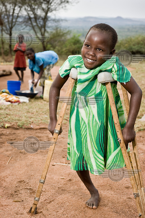 Child at a school for children and young people with disabilities. The school is supported by NGO Terre Des Hommes and employs a team of social workers who make home visits to parents with disabled children, aiding with physiotherapy and raising awareness in communities to combat stigma.